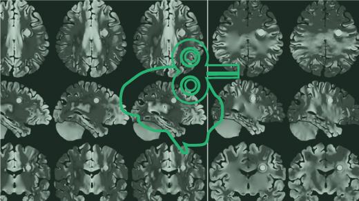 research-brain-stimulation